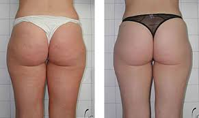 cellulitis weg masseren